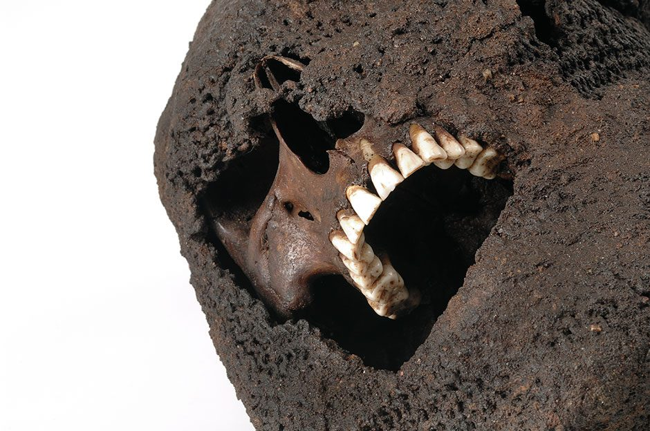 Skull of a young man.